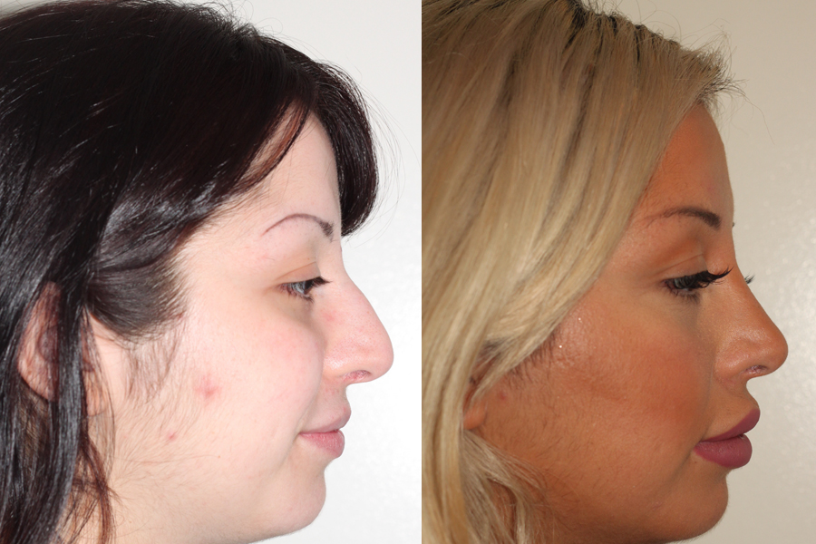 Before & After | 5 year follow up | Closed Rhinoplasty | Lateral View