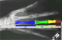Bones in the hand demonstrating fibonacci's sequence