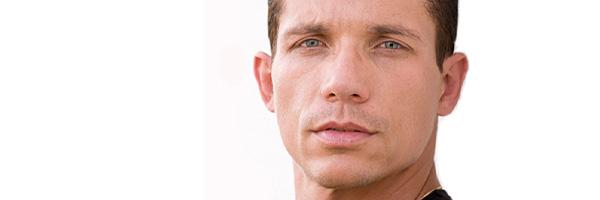 Lipoatrophy Facial Filling Vancouver