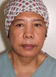 Sylvia has been a long time registered nurse specialist with Dr Denton in Vancouver