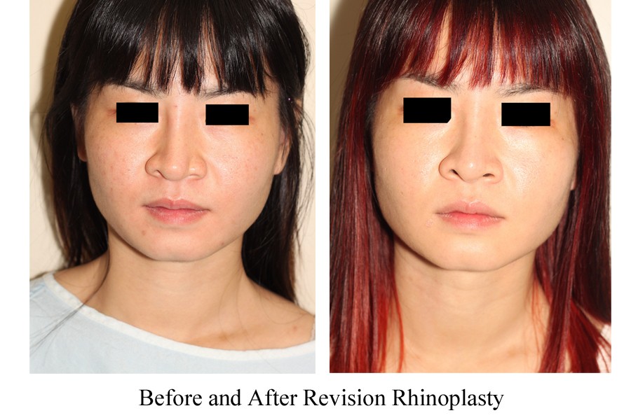 Before & After Revision Rhinoplasty Nasal Augmentation - Front View