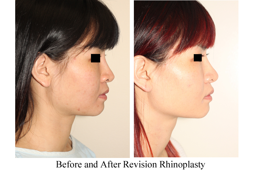 Before & After Revision Rhinoplasty Nasal Augmentation - Side View