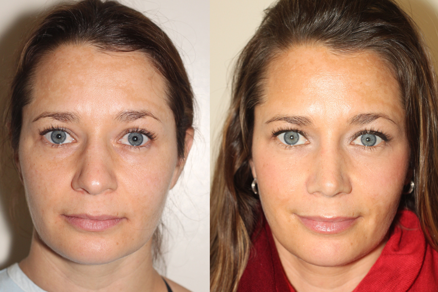 frontal view of before and after photos of open rhinoplasty patient