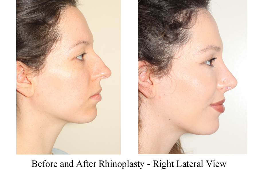 Before & After Tip Refinement & Deprojection of the nose - Front View