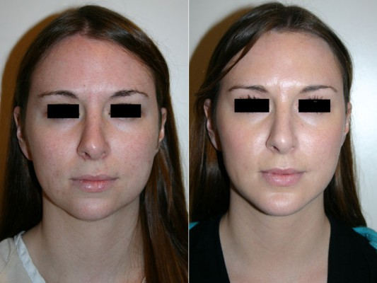 Before and after images of a young female who has undergone chin implant surgery.