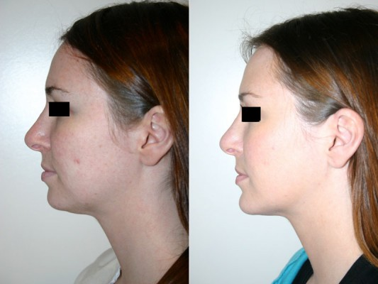 Side profile of chin augmentation surgery by Dr. Denton to help lengthen the lower one third of this patient's face.*