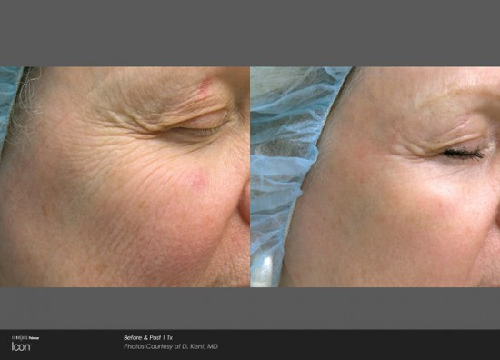 Before & After 1Tx Courtesy of B. Katz, MD*