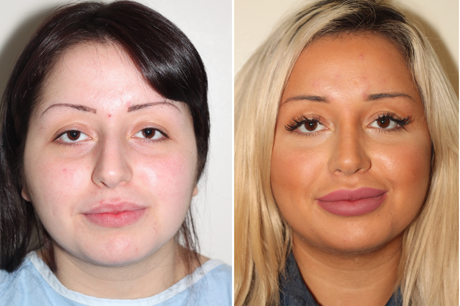 Rhinoplasty Before And After Before & After ...