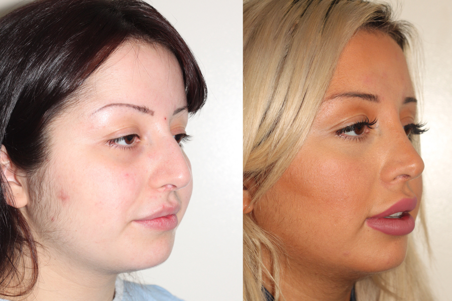 Before & After | 5 year follow up | Closed Rhinoplasty | Side View