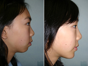 chin augmentation surgery of an Asian patient