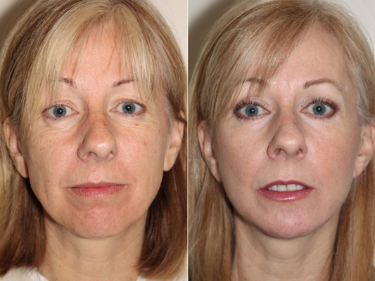 Before and after images of a 50 year old female who has undergone Facelift surgery and chin implant surgery in Vancouver to improve loss of skin tone along jaw line.