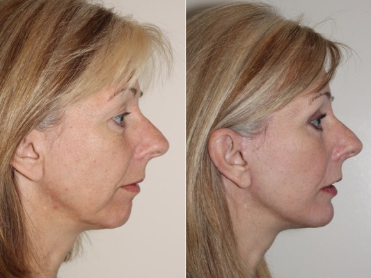 This 50 year old patient was unhappy with her profile as well as the progressive flattening of her cheeks and loss of skin tone along her jaw, and underwent facelift and chin augmentation surgery in Vancouver by Dr. Andrew Denton to result in a much improved profile.*