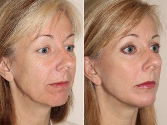 Before and after images of drastic improvements in neck, jaw line and cheeks following facelift surgery and chin implant surgery in a female patient.