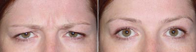 forehead botox treatments in Vancouver