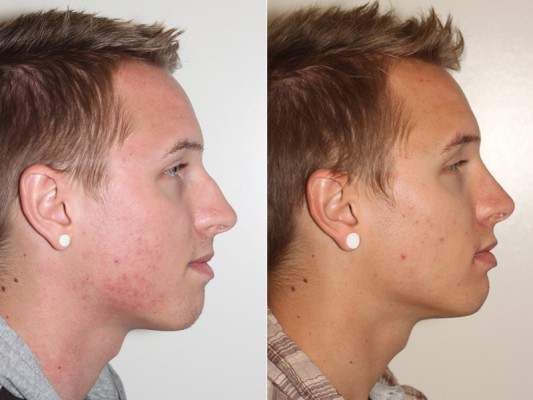 Side profile of closed rhinoplasty on this 20 year old patient, exemplifying the removal of the nasal hump and straightening of the nose bridge, while refining and deprojecting the tip of the nose.*