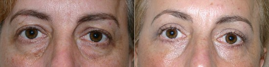 removal of fat form eyelids on 47 year old female patient