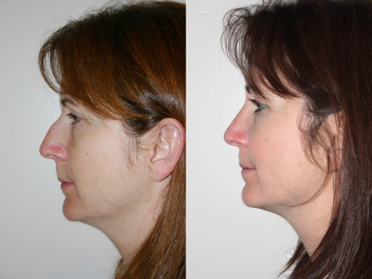 Side profile of a 43 year old patient who underwent a closed rhinoplasty procedure with Dr. Denton, resulting in a improved facial profile, projection and rotation of the nose and nose tip.*