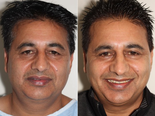 Eyelid lift surgery in Vancouver for a 52 year old male patient
