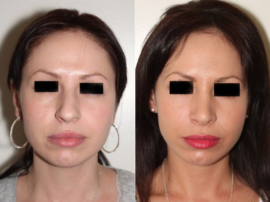 Before and after photos of this 25 year old closed rhinoplasty patient to remove the prominent bump on her nose bridge, and to reduce the nose length as well as to improve the tip and rotation of her nasal symmetry.*