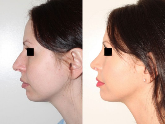 A more defined nose tip was created and rotated, along with the lowering of the nose bridge were the results of this closed rhinoplasty procedure.*