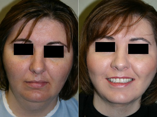 Follow facial liposuction of the neck and jaw line, a dramatic improvement can be seen in the structural appearance of this patient's face.*