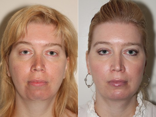 Dramatic and natural improvement in facial symmetry and structure of patient following chin augmentation and facial liposuction*