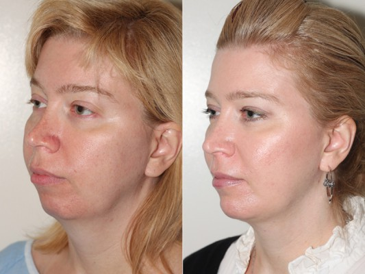 Showing the side contour of facial improvements of a patient following chin augmentation and facial and neck liposuction*