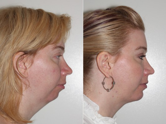 Before and after images of a female who underwent chin implant surgery and facial liposuction.