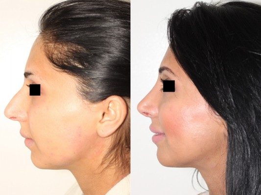 Closed rhinoplasty procedure for 26 year old patient to refine, rotate and deproject the tip of the nose, resulting in a more feminine appearance.*