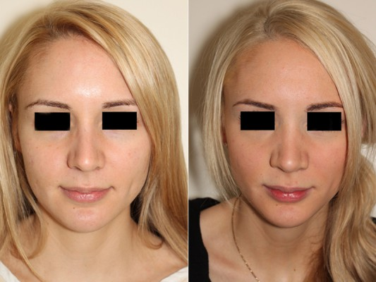 Rhinoplasty surgeon Dr. Andrew Denton achieved the surgical goals in this rhinoplasty procedure to help this patient achieve a more feminine looking nose.*