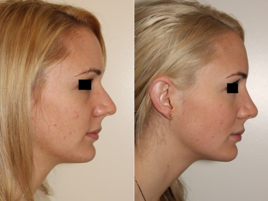 Closed rhinoplasty to decrease nasal tip projection, increase tip rotation and help the nasal profile appear more feminine.*