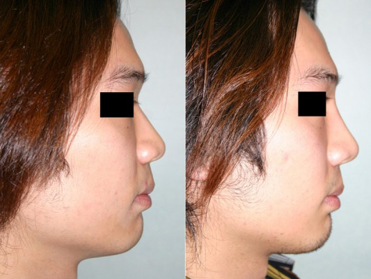 before and after rhinoplasty surgery on Asian patient