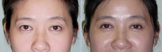 Asian upper eyelid surgery before and after photo