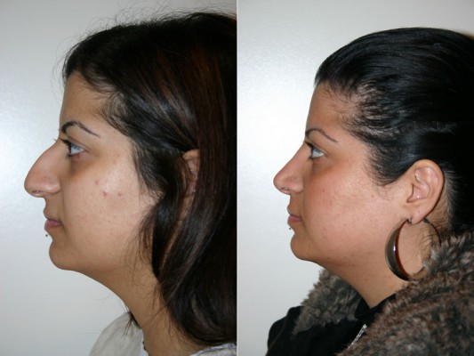 Following rhinoplasty, the facial profile of this patient has been lowered, the nose shortened and the nose tip rotated, resulting in a more feminine position and improved balance to facial structure.*