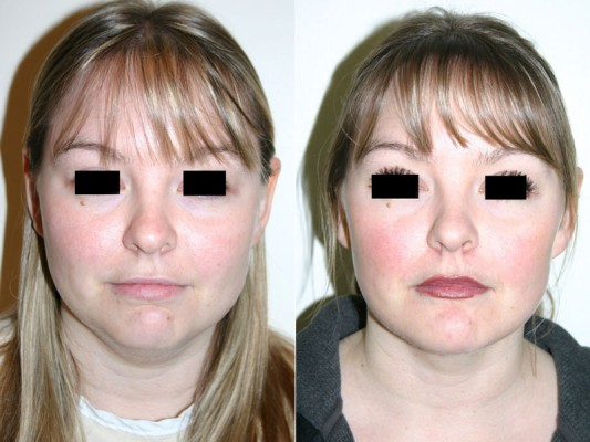 Chin augmentation, facial and neck liposuction to improve facial features in 33 year old patient*