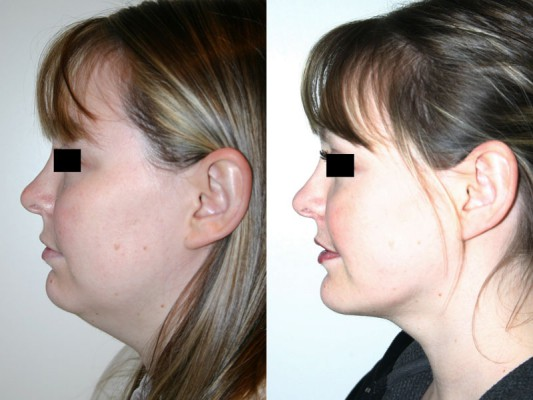 Before and after images of 33 year old female who underwent chin implant and facial liposuction surgery, showing the positional change of the chin and contour of the neck and jaw line.