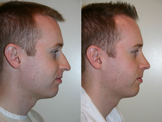 This patient underwent closed rhinoplasty and techniques like shortening the nose, rotating the nasal tip and lowering the nose bridge helped to bring about a more youthful appearance.*