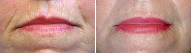 Before and after laser skin resurfacing of the upper and lower lip.*