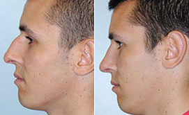 Following rhinoplasty, this patient achieved a smaller, more balanced nose that is proportional to his face.*