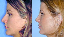 Dr. Denton performed this rhinoplasty procedure to help this patient to reduce the size and tip of her nose, with a postoperative profile that appears more feminine and in better balance with the patient's face.*