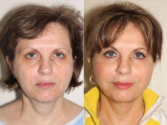 SMAS facelift with Dr. Denton to remove excess fat from 57 year old patient