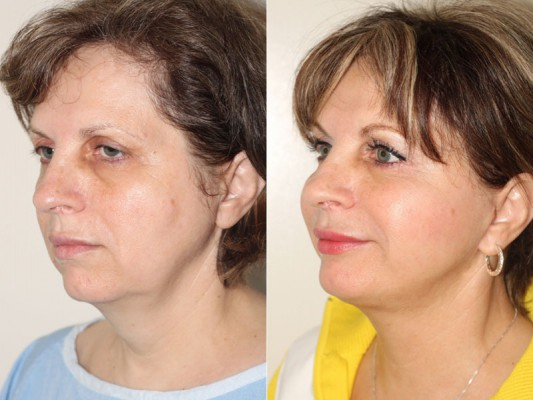 Side profile of a 57 year old patient who underwent a SMAS facelift in Vancouver, helping her restore her youthful appearance.*