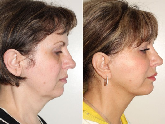 SMAS facelift procedure performed by Dr. Denton to remove excess skin and fat