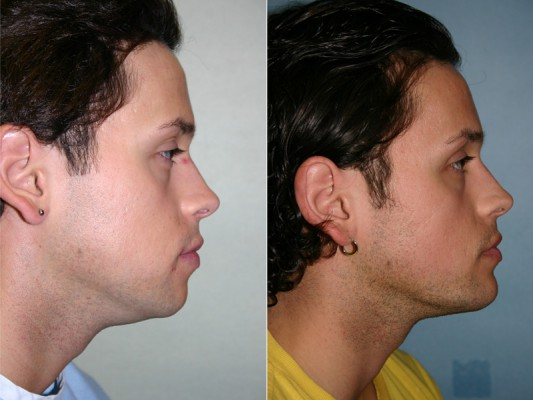 Before and after images of a young male who has undergone chin implant surgery and facial liposuction.