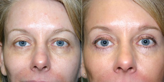 before and after photos of upper and lower blepharoplasty in Vancouver