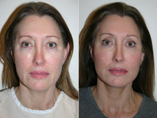 Following this browlift - an upper eyelid blepharoplasty and an endoscopic forehead lift - a more alert and rested appearance is achieved.*