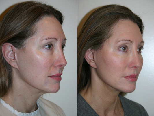 before and after photos of facelift surgery showing improvements in jaw and chin