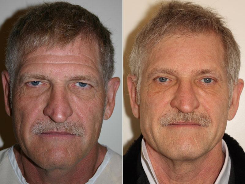 Older Male Eyelid Surgery Dr Denton