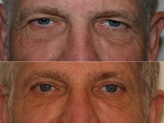 Before and after close-up image of a 59 year old male who has undergone upper eyelid blepharoplasty surgery and endoscopic browlift surgery.