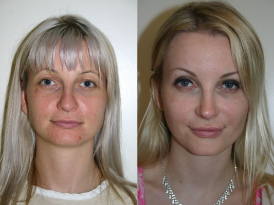Closed rhinoplasty surgery on a 29 year old patient to improve the shape of the nose and architecture of the nose tip.*